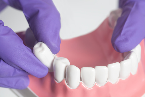 A gloved hand removing a tooth from a 3D model of the lower teeth